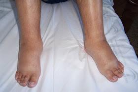 piernas y pies hinchados rojos